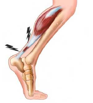 tendon d'Achille.jpg